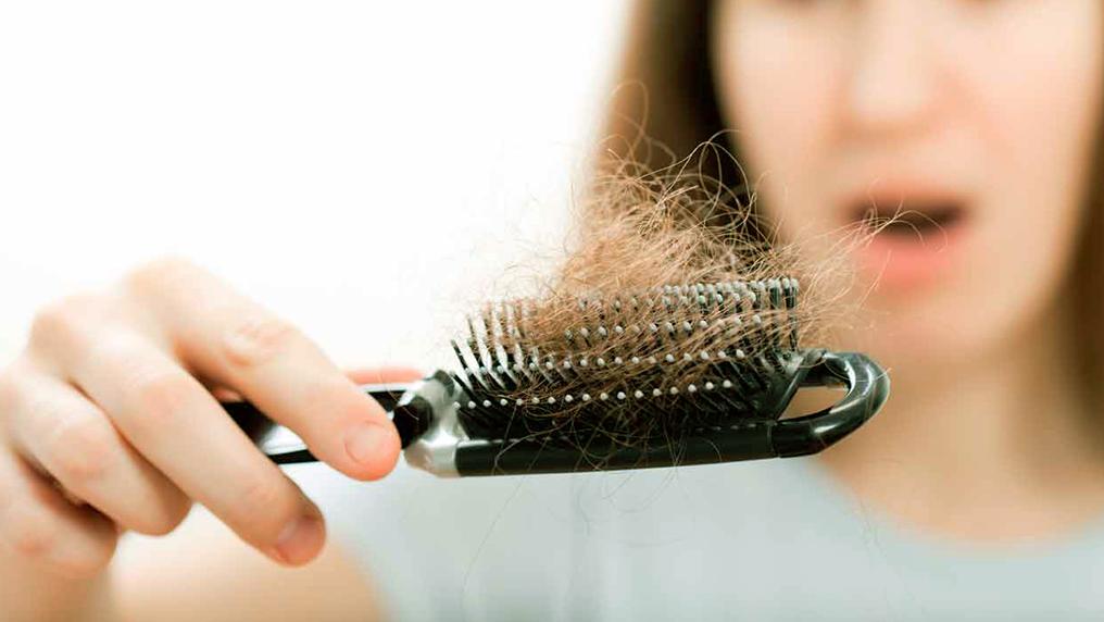 Alopecia feminina: como tratar a queda de cabelo na mulher