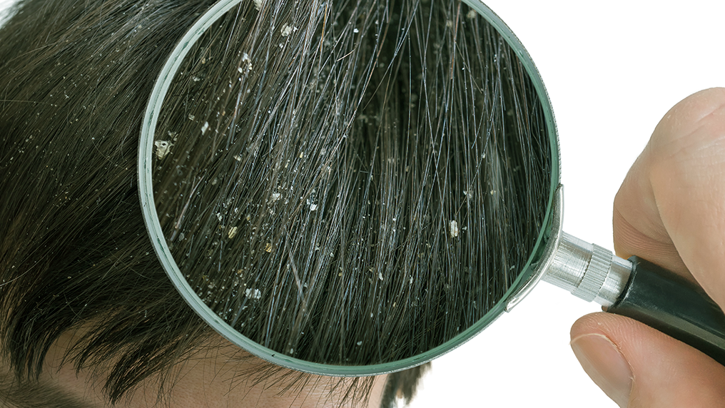 5 verdades sobre a caspa que você precisa saber